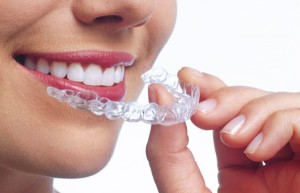Invisalign uses a series of clear aligners